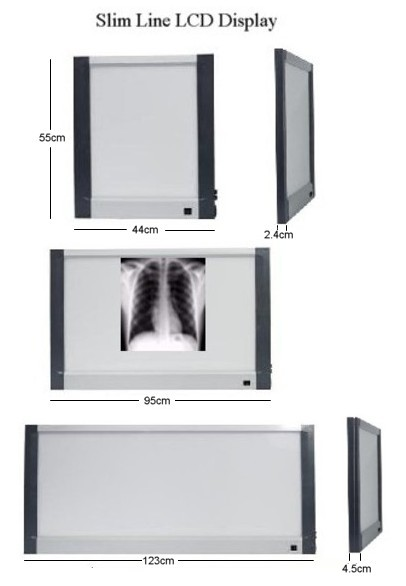 Slim Line X-Ray viewing boxes.